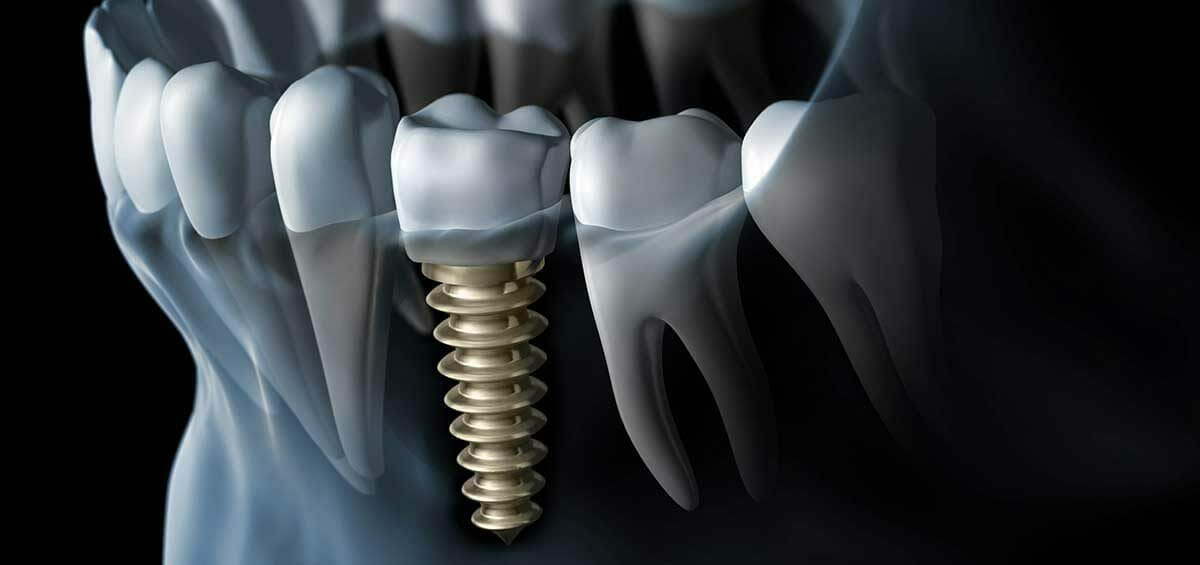Dentist in Centurion -A 101 Guide to Dental Implants