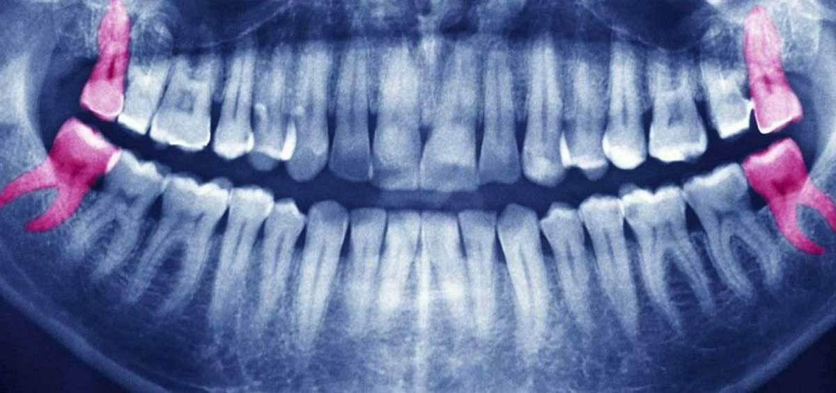 Dentist in Centurion Wisdom Tooth Infections Signs, Treatment and Removal - Dentist in Centurion