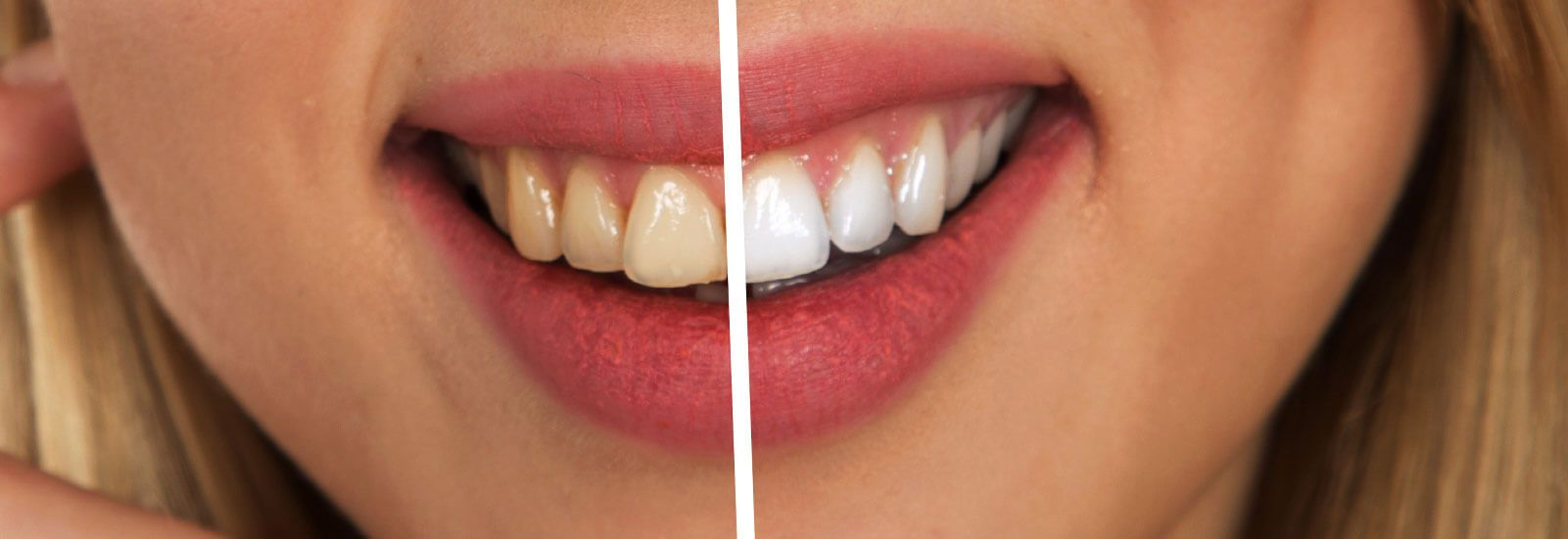 Before and after Dentist in Centurion