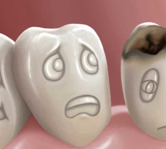 What You Need To Know About Tooth Decay Tips from your trusted dentist in Centurion