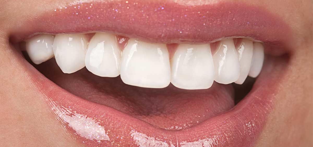 Professional Dentist in Centurion Specialised with Dental Bridges to Restore Your Smile