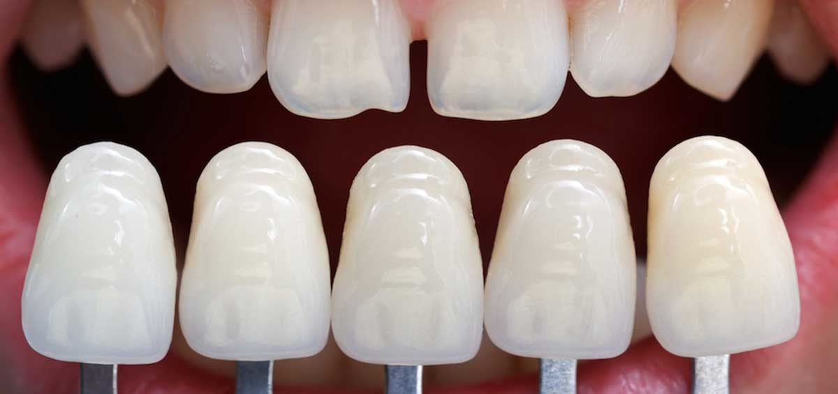 Your Best Dentist in Centurion Talks Dental Veneers