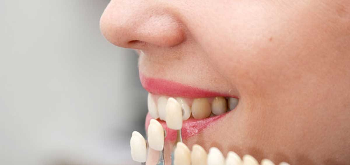 All you Need to Know About Dental Crowns from your Dentist