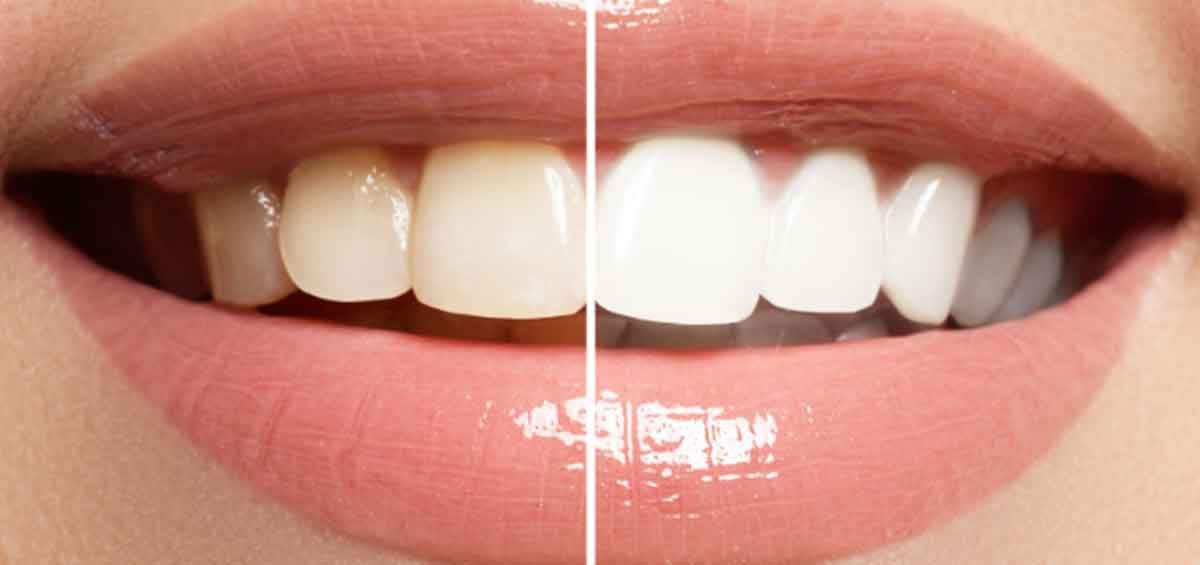 Dental Whitening for a Glowing Smile – Ask your Dentist in Centurion