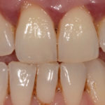 Can your Dentist Centurion Help you Combat Periodontal Disease?