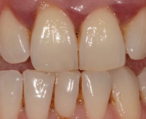 Can your Dentist Centurion Help you Combat Periodontal Disease
