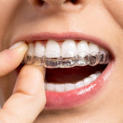 Invisalign-Braces-Centurion-Dentist
