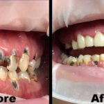 Teeth Restoration Helping the Local Community to Smile Again