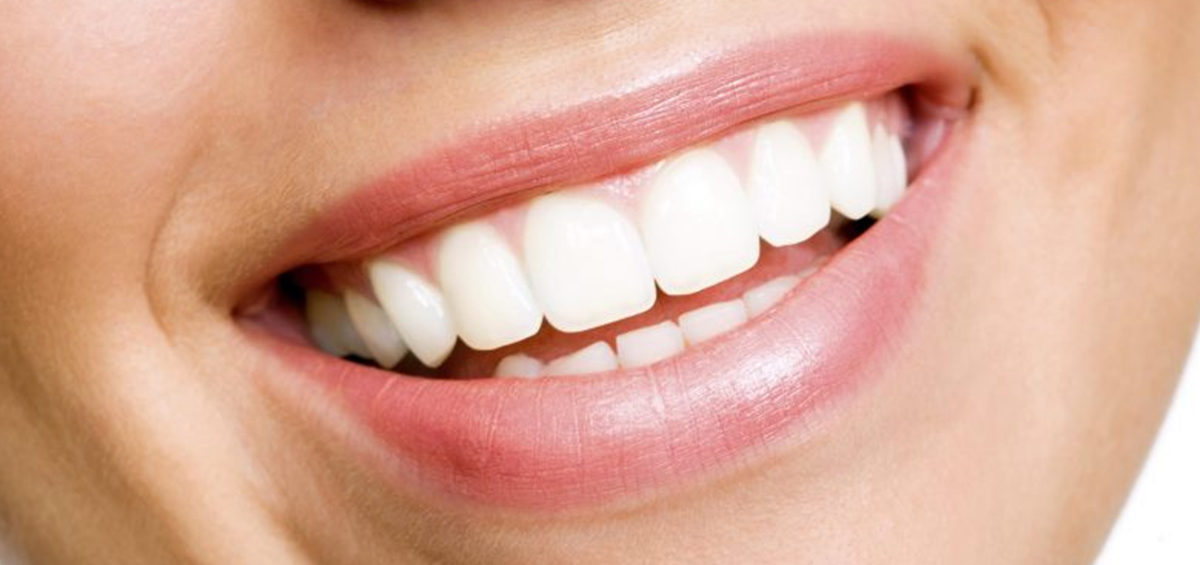 What is Dental Composite Bonding