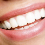 What is Dental Composite Bonding?