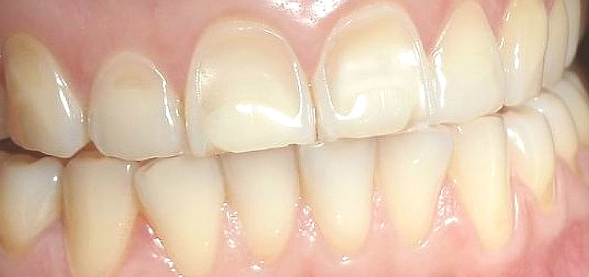 Are You Suffering from Bruxism Let your dentist in Centurion help