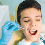 Dental Visits: What Can You Expect from a Dental Visit