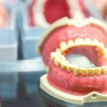 Are you considering Dentures? Your dentist shares some Pros and Cons